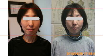 小顔矯正施術例31
