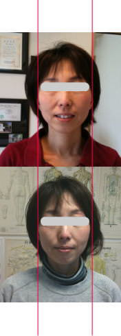 小顔矯正施術例32