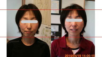小顔矯正施術例33