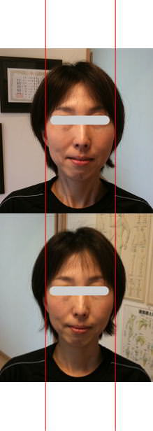 小顔矯正施術例35
