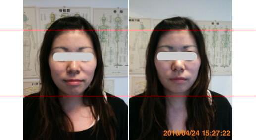 小顔矯正性施術例42
