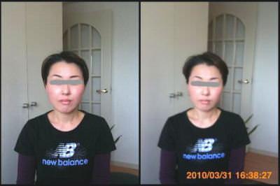 小顔矯正施術例44