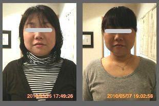 小顔施術例11