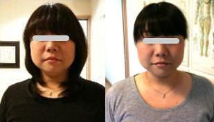 小顔矯正施術例12