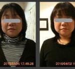 小顔矯正施術例17