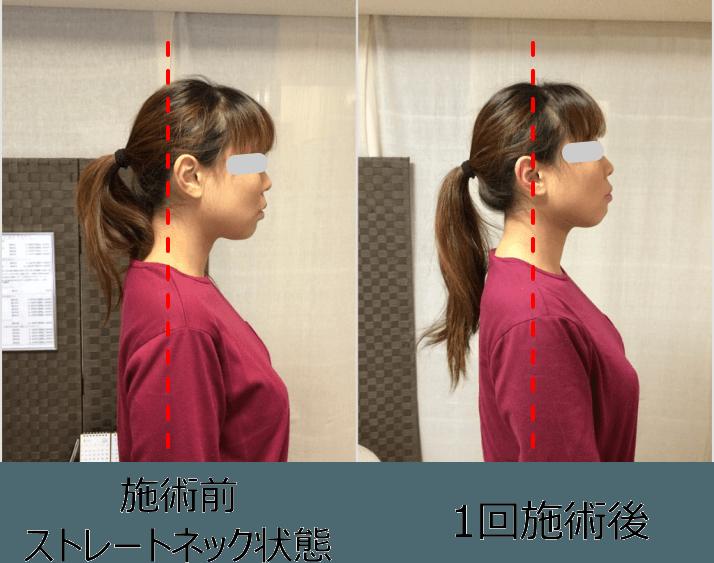 小顔矯正ストレートネック対策矯正施術例3..2