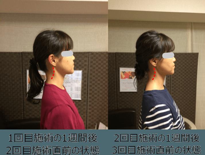小顔矯正ストレートネック対策矯正(施術例6)