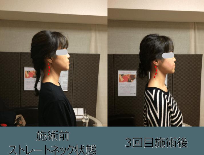 小顔矯正ストレートネック対策矯正(施術例6_2)