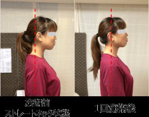 小顔矯正ストレートネック対策矯正施術例3..1