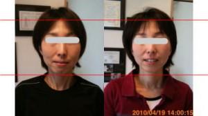 小顔矯正施術例34
