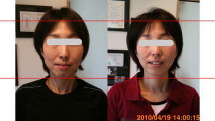 小顔矯正で若返る・アンチエイジング3