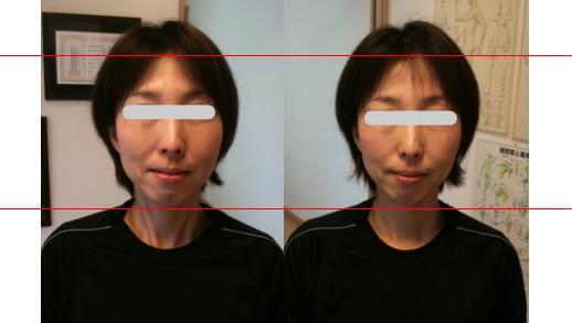 小顔矯正で若返る・アンチエイジング6