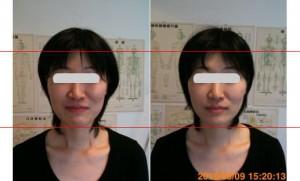 小顔矯正施術例41