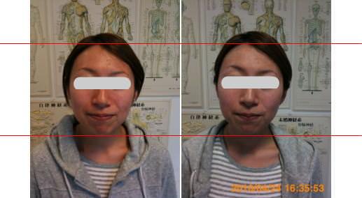 小顔矯正で左右差解消3