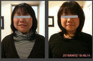 小顔矯正の施術例1大阪・奈良・神戸の女性専用サロン