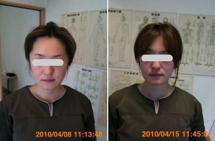 小顔矯正の顎の位置の変化