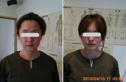 小顔矯正の顎の位置の変化2