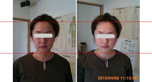 小顔矯正の顎の位置の変化3