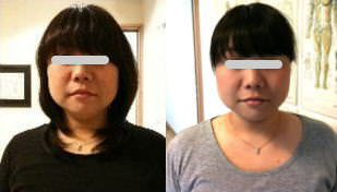 小顔矯正の比較画像2