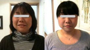 小顔矯正施術例13