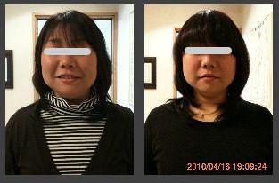 小顔矯正の比較画像4