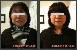 小顔矯正の比較画像5