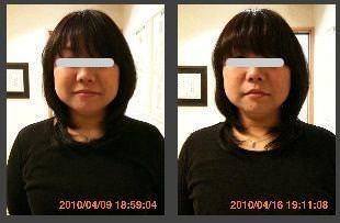 小顔矯正の比較画像6