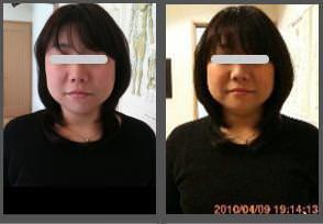 小顔矯正の比較画像7