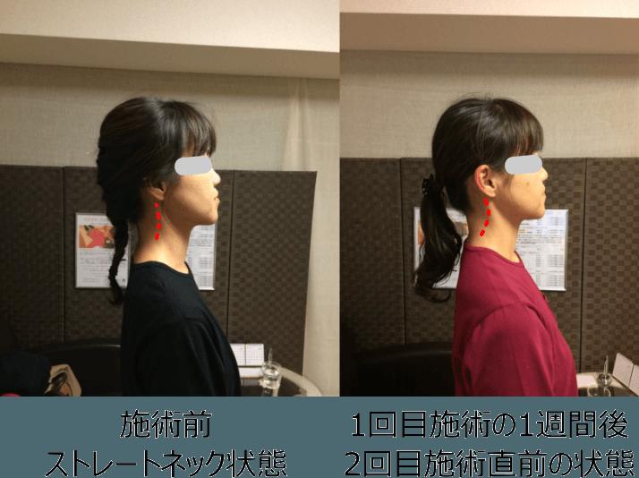 小顔矯正ストレートネック対策矯正(施術例4)