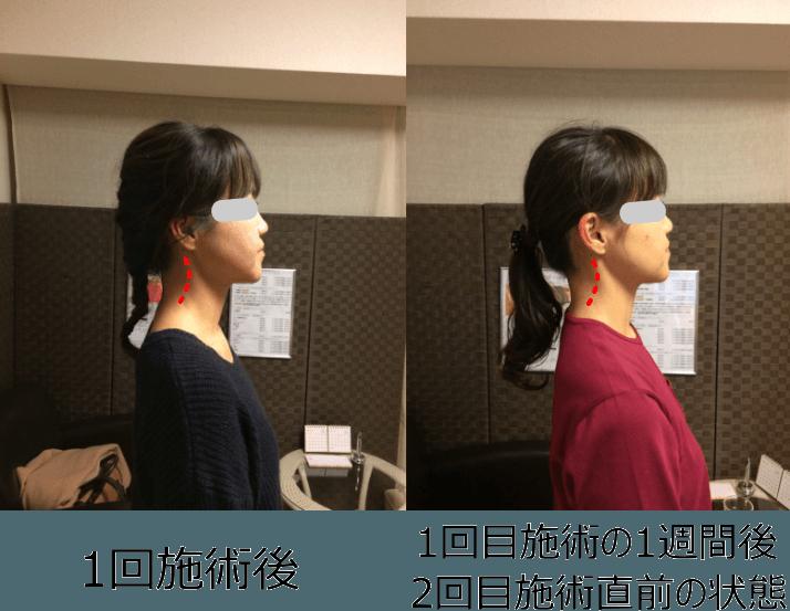 小顔矯正ストレートネック対策矯正(施術例5)