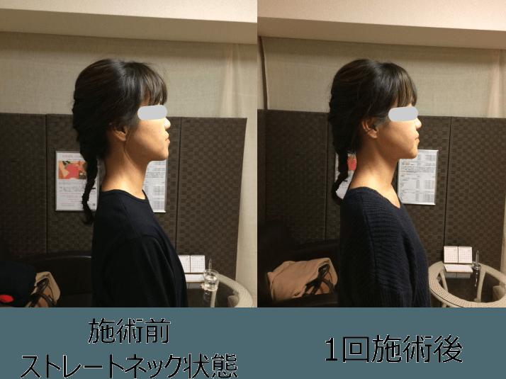小顔矯正ストレートネック対策矯正(施術例1)