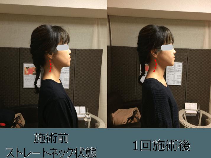 小顔矯正ストレートネック対策矯正(施術例2)